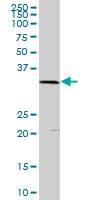 H00005359-D01 - Scramblase 1 / PLSCR1