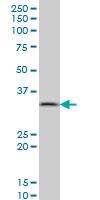 H00005464-M01 - Pyrophosphatase 1 / PPA1