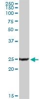 H00005534-D01P - PPP3R1 / Calcineurin B
