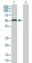 H00005589-B01 - Glucosidase 2 subunit beta