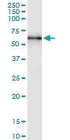 H00005589-D01 - Glucosidase 2 subunit beta