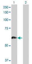 H00005589-D01P - Glucosidase 2 subunit beta