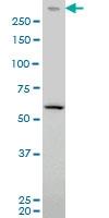 H00005591-M03 - DNA-PKcs / PRKDC / XRCC7