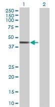 H00005600-B01 - MAP kinase p38 beta / MAPK11