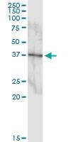 H00005600-D01 - MAP kinase p38 beta / MAPK11