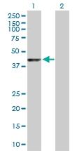 H00005600-D01P - MAP kinase p38 beta / MAPK11