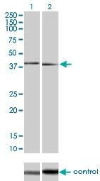 H00005600-M03 - MAP kinase p38 beta / MAPK11