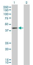 H00005603-D01P - MAP kinase p38 delta / MAPK13