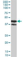 H00005603-M01 - MAP kinase p38 delta / MAPK13