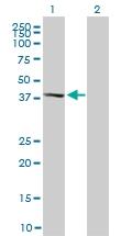 H00005603-M02 - MAP kinase p38 delta / MAPK13