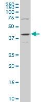 H00005603-M04 - MAP kinase p38 delta / MAPK13