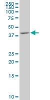 H00005603-M07 - MAP kinase p38 delta / MAPK13