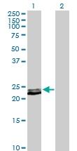 H00005617-D01P - Prolactin / PRL