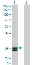 H00005617-M02 - Prolactin / PRL