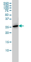 H00005617-M04 - Prolactin / PRL