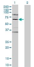 H00005618-B01 - Prolactin receptor