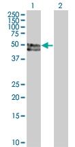 H00005624-B01 - Protein C / PROC