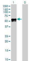 H00005624-D01P - Protein C / PROC