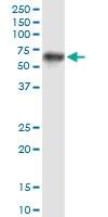 H00005624-M01 - Protein C / PROC