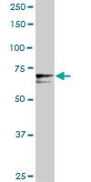 H00005627-D01P - Protein S / PROS1