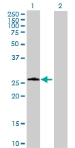 H00005723-B01P - Phosphoserine phosphatase