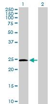 H00005723-D01P - Phosphoserine phosphatase