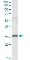 H00005723-M01 - Phosphoserine phosphatase