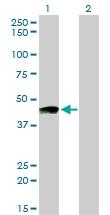 H00005739-M01 - Prostacyclin receptor / PTGIR