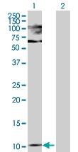 H00005741-D01P - Parathyroid hormone / PTH