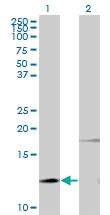 H00005741-M11 - Parathyroid hormone / PTH