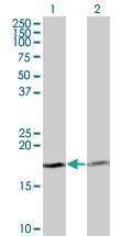 H00005741-M12 - Parathyroid hormone / PTH