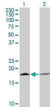 H00005741-M13 - Parathyroid hormone / PTH