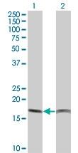 H00005741-M14 - Parathyroid hormone / PTH