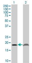 H00005741-M15 - Parathyroid hormone / PTH