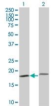 H00005741-M17 - Parathyroid hormone / PTH