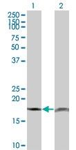 H00005741-M18 - Parathyroid hormone / PTH