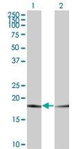 H00005741-M19 - Parathyroid hormone / PTH
