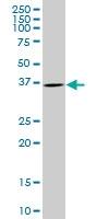 H00005756-B01 - Twinfilin-1 (TWF1)