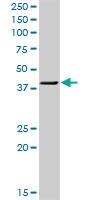H00005756-D01 - Twinfilin-1 (TWF1)