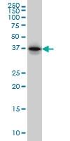 H00005756-M01 - Twinfilin-1 (TWF1)