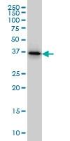 H00005756-M02 - Twinfilin-1 (TWF1)