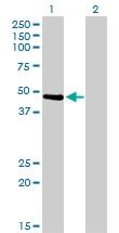 H00005756-M05 - Twinfilin-1 (TWF1)