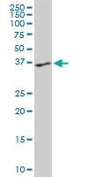 H00005756-M06 - Twinfilin-1 (TWF1)