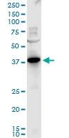 H00005828-A01 - Peroxin 2 / PEX2 / RNF72