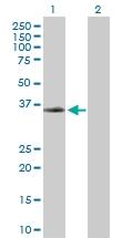 H00005829-D01P - Paxillin /  PXN