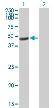 H00005955-B01P - Reticulocalbin-2 / RCN2