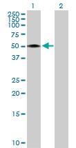 H00005955-D01P - Reticulocalbin-2 / RCN2