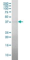 H00005955-M01A - Reticulocalbin-2 / RCN2