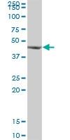 H00006050-B01P - Ribonuclease inhibitor (RNH1)