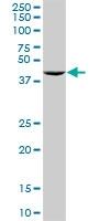 H00006050-D01P - Ribonuclease inhibitor (RNH1)
